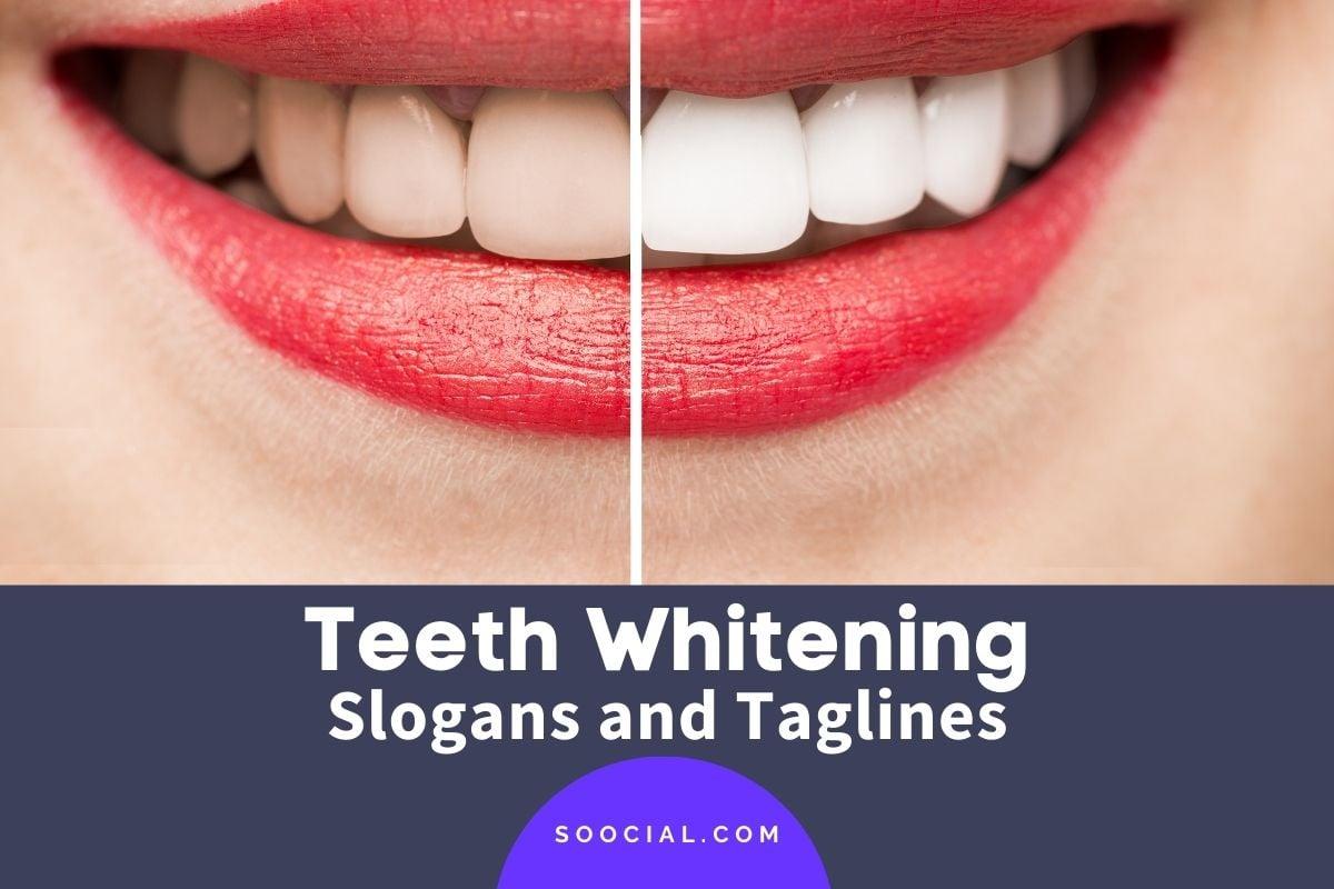 Teeth Whitening Slogans