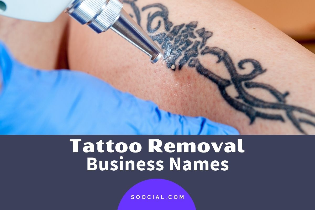 Tattoo Removal Business Names
